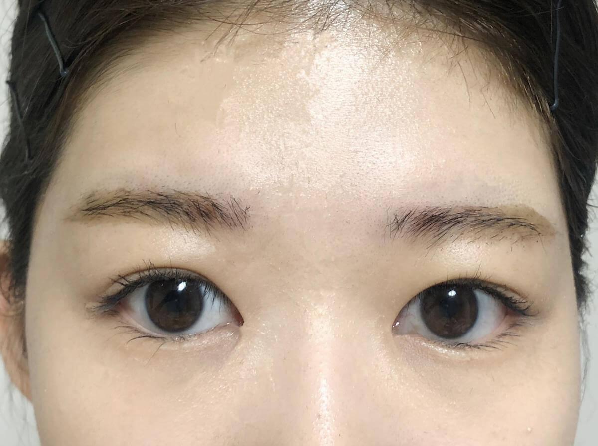 眉ティントを剥がしたばかりのアフター写真